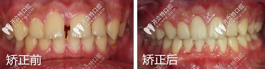 做牙齿矫正的前后对比图