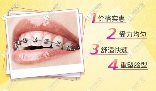 属于你的金属牙齿矫正优惠活动