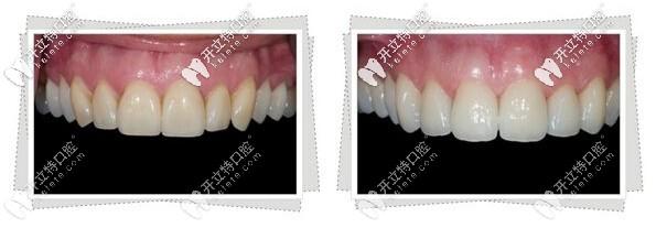 牙齿瓷贴面前后对比图