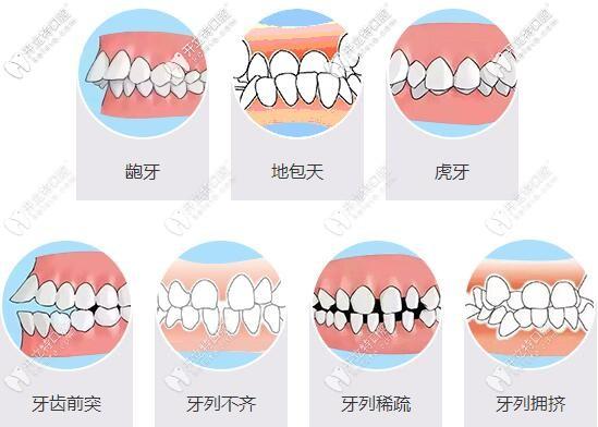 牙齿畸形对我们的影响很大