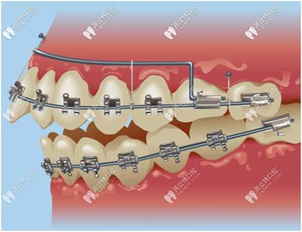 金属自锁托槽牙齿矫正优惠价格