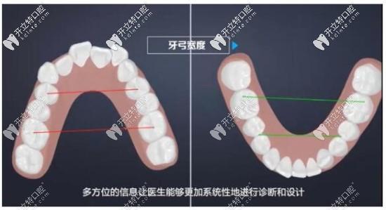 数字化牙齿矫正优惠价格