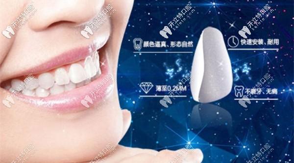 牙齿美白瓷贴面优惠活动