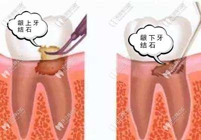洗牙竟然还要把牙龈翻开洗?这是神马操作!
