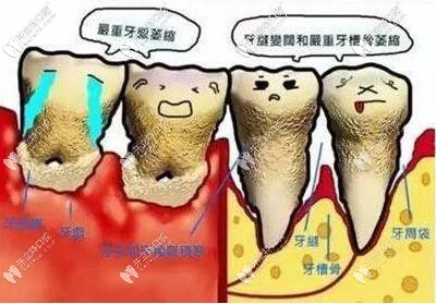 龈下洗牙会不会很痛