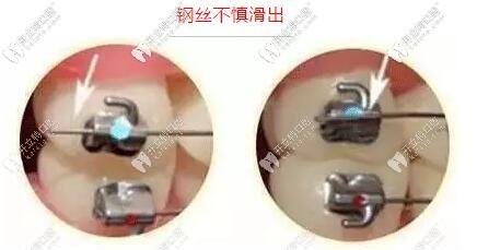 牙齿矫正期间金属牙套钢丝不慎滑出