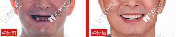 上海茂菊口腔全口种植牙案例