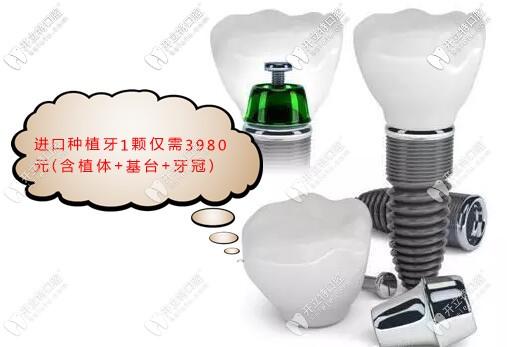 上海种植牙价格超划算