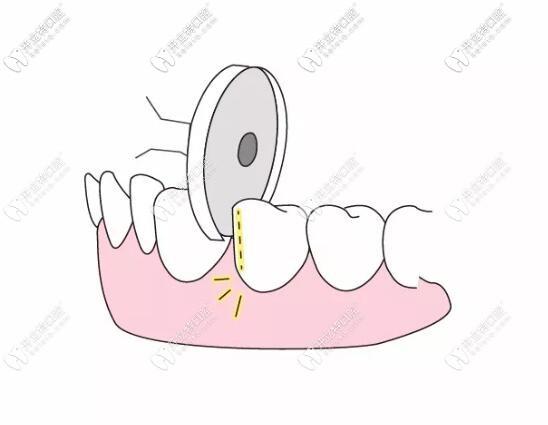 牙齿矫正片切