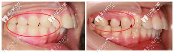 推磨牙的优势在于减少了拔牙矫正的概率
