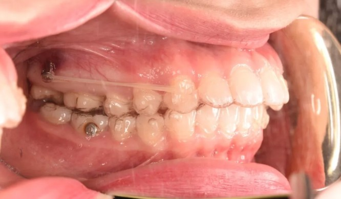妹纸做隐适美磨牙后推打骨钉的整牙经历,没想到效果挺不错