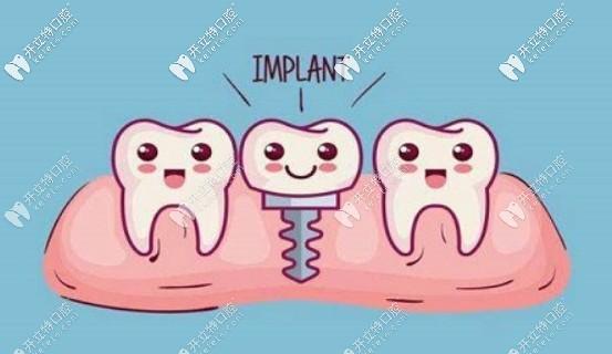 疫情防控期能做种植牙吗?另附种植牙突发情况的应对指南