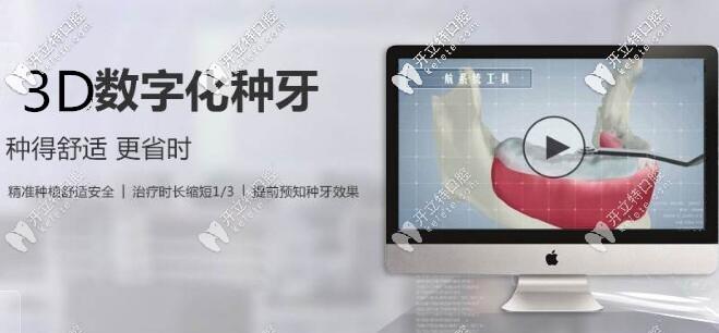 上海摩尔口腔3D数字化种植牙更舒适