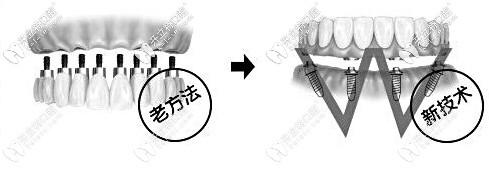 北京立得用种植牙技术