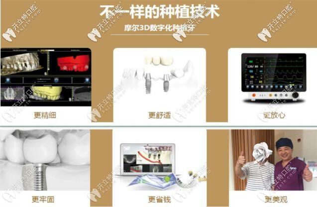 上海摩尔口腔3D数字化种植牙