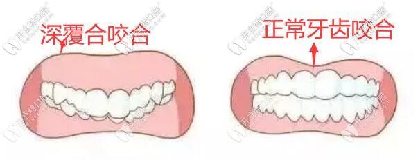 深覆合咬合和正常牙齿的咬合