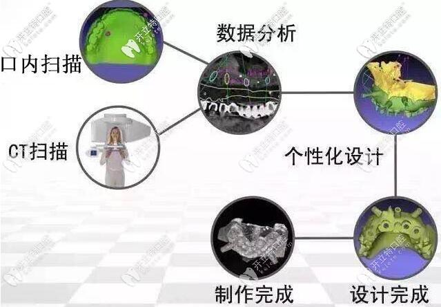 3D数字化导板种植牙不翻瓣