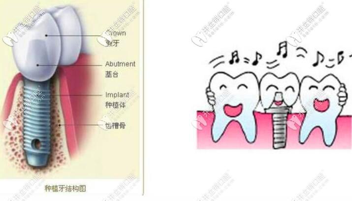 种植牙应急措施