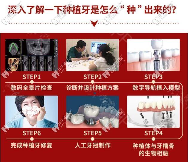 种植牙手术过程图解
