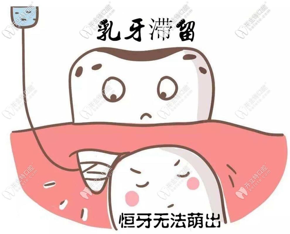 乳牙滞留的图片