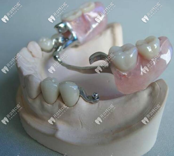 精密附着体义齿2万有人说贵,原来正是这些缺点影响它的价格