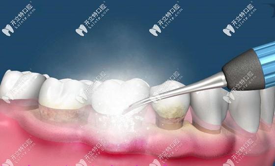 定期洗牙是预防牙病的关键