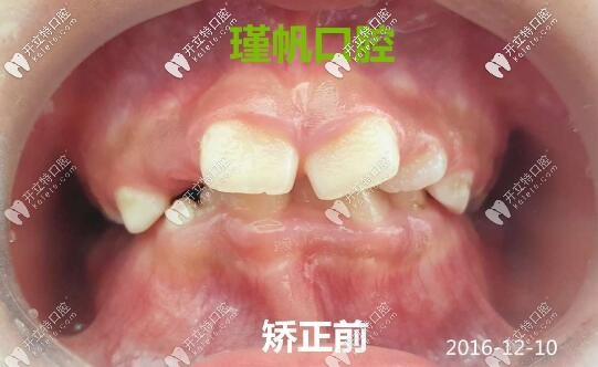 孩子牙列畸形在换牙期做矫正的效果胜过整容,不信进来瞧