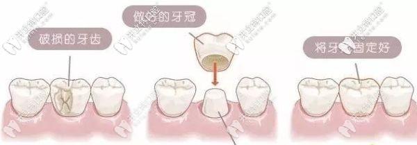 解答:门牙缺了一小块是选牙齿贴面还是全瓷牙好呢?