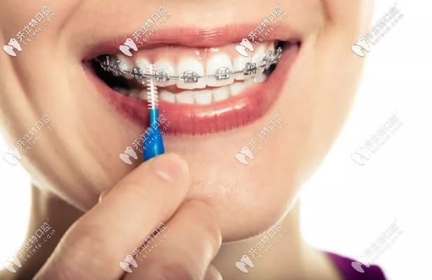 自锁托槽牙套_小妙招:教你1分钟选出适合自己的正畸牙套 - 口腔保健 - 开立特 ...