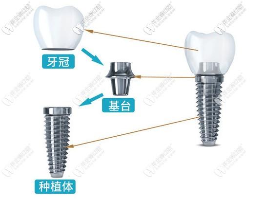 韩国登腾种植牙