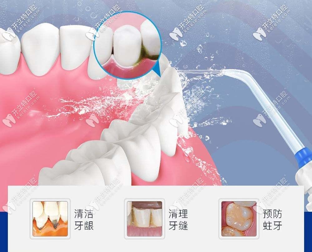 洗牙选超声波洁牙还是磁伸缩洁牙有什么区别吗?