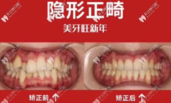 温州潮妈的隐形矫正日记:戴隐适美牙套860天的收获和感触