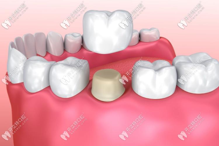 全瓷牙修复