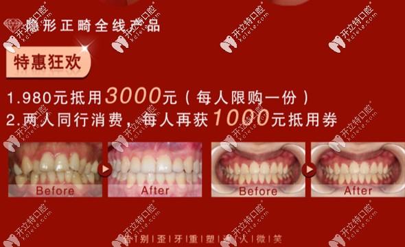 温州艺星口腔牙齿矫正福利
