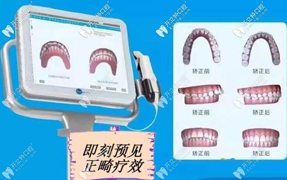 在美奥矫正牙齿几分钟即刻预见矫正效果