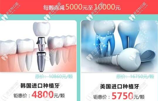 广大口腔种植牙优惠