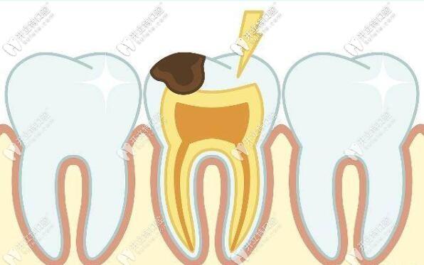 牙疼是什么原因引起的呢