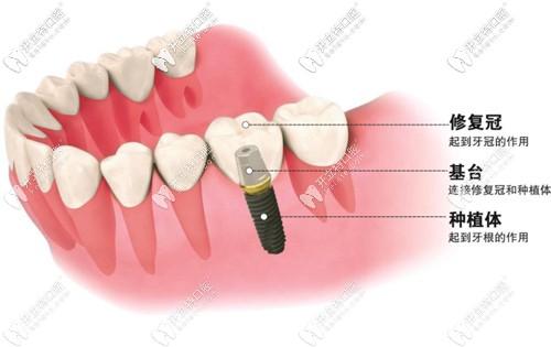 别迷糊,种植牙的原装成品基台和个性化定制基台区别在这