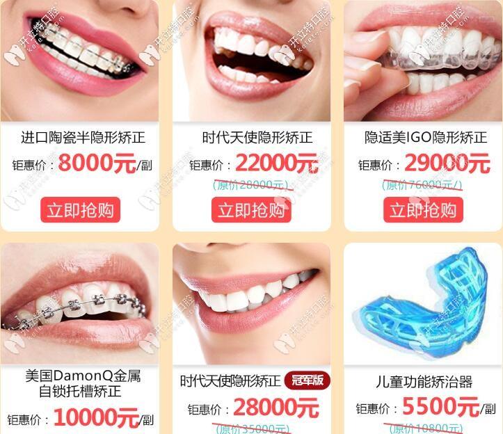 广州成人牙齿矫正活动价格表
