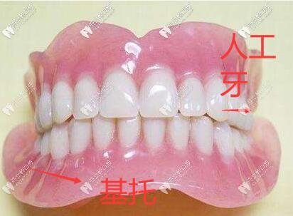 浅谈全口义齿种类大全,看完就知道假牙用什么材料好了