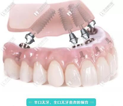 拔牙后能立即种牙吗?北京做种植牙好的这家口腔说出了真相