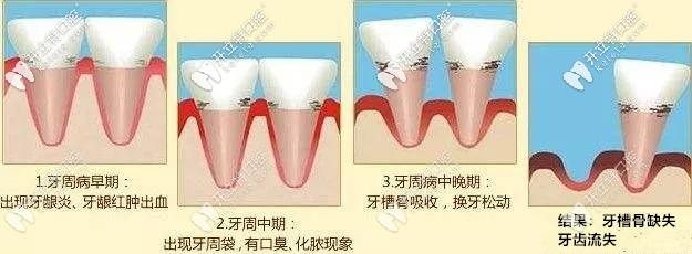 牙周疾病的发展过程