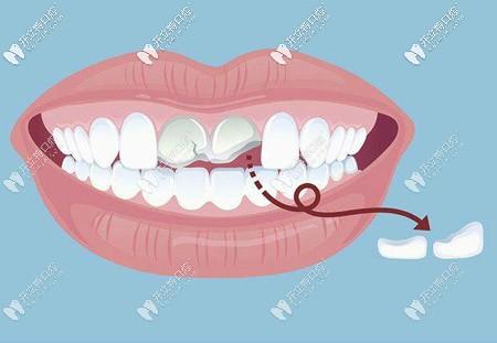 江湖救急!请问门牙断了一半做补牙的价格是多少啊