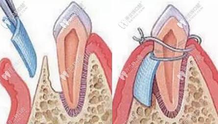 GBR膜引导骨组织再生术