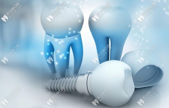 种植牙价格会随品牌的不同而有差异