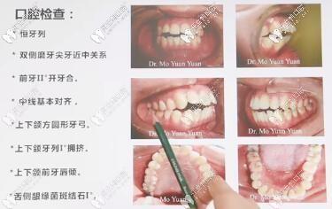 骨性前凸开颌,拔牙四颗,进口ormco自锁托槽矫正,历时22个月