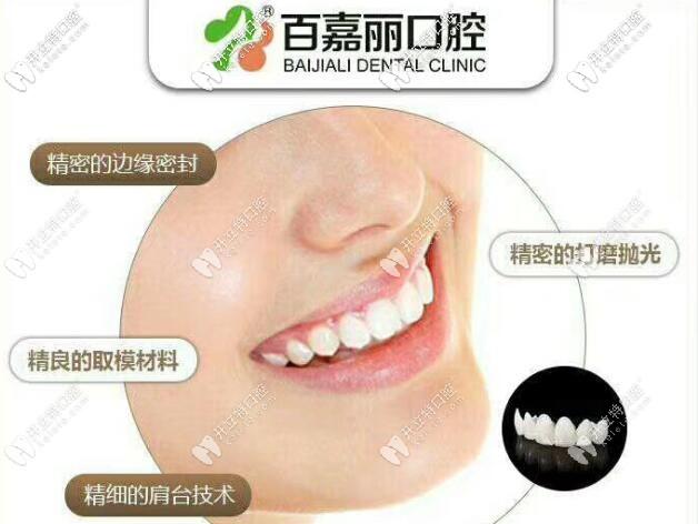 沈阳百嘉丽口腔3D全瓷美容牙冠的优势