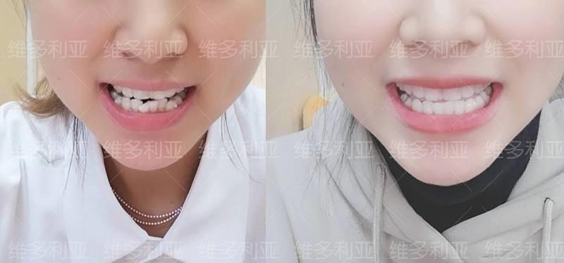 门牙外翻在杭州做隐适美隐形矫正已10个月,效果肉眼看可见