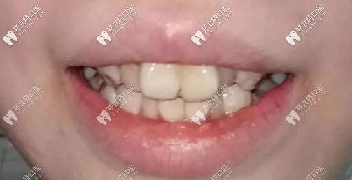 兔子牙矫正前后对比照来喽,我是戴时代天使隐形牙套矫正滴