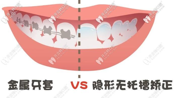 金属牙套和隐形牙套的图片
